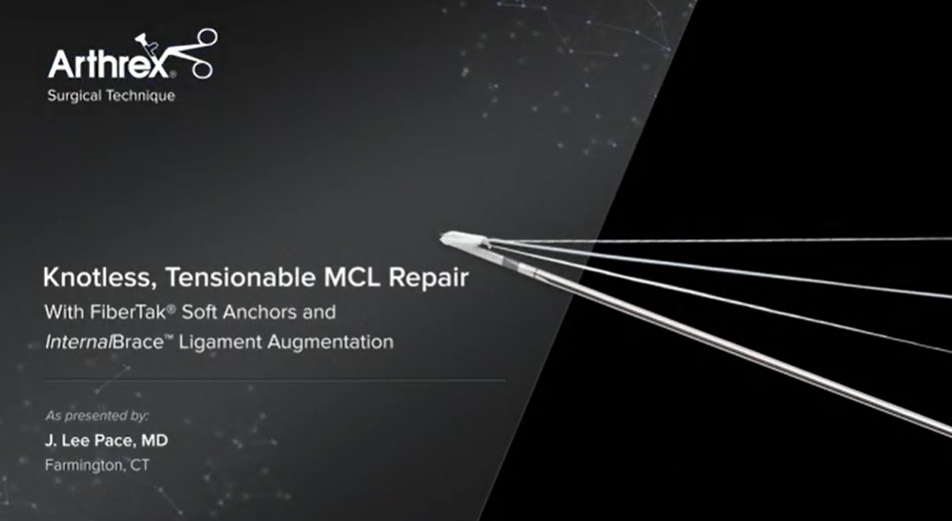 Knotless, Tensionable MCL Repair